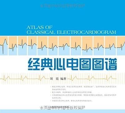 经典心电图图谱.pdf