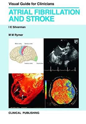Atrial Fibrillation and Stroke.pdf